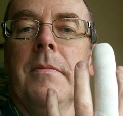 20110310 010 finger (David J. Radcliffe (Isle of Man)) Tags: finger injury 20110310