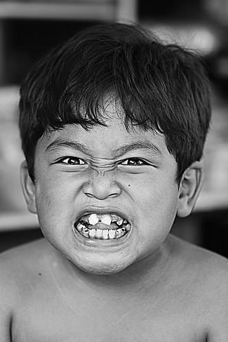 missing teeth.