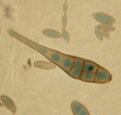 Alternaria & Cladosporium