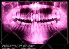 Dental X-ray (__Viledevil__) Tags: blue espaa macro mouth skull technology image teeth science panoramic dental full equipment human xray anatomy and service medicine bone sanfernando dentist cdiz healthcare hygiene disease filling periodontal buccal periodontist