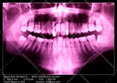 Dental X-ray (__Viledevil__) Tags: blue espaa macro mouth skull technology image teeth science panoramic dental full equipment human xray anatomy and service medicine bone sanfernando dentist cdiz healthcare hygiene disease filling periodontal buccal periodontist
