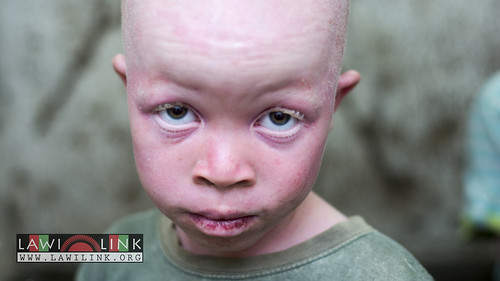 "Persons with Albinism • <a style=""font-size:0.8em;"" href=""http://www.flickr.com/photos/132148455@N06/27145848742/"" target=""_blank"">View on Flickr</a>"