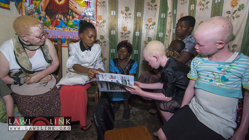 "Persons with Albinism • <a style=""font-size:0.8em;"" href=""http://www.flickr.com/photos/132148455@N06/26637125334/"" target=""_blank"">View on Flickr</a>"