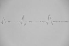 Thme : La Ligne (Loc C-F) Tags: life death mort coeur hearth nurse care concours sant vie 2012 ligne facebook ecg fvrier mdecin thme electrocardiogramme artre thmatique lectrocardiogramme