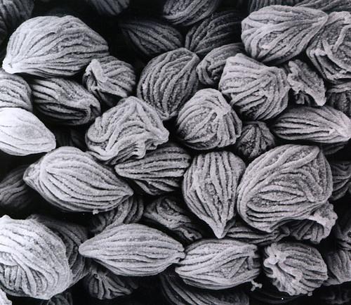 Rhizopus sporangiospores