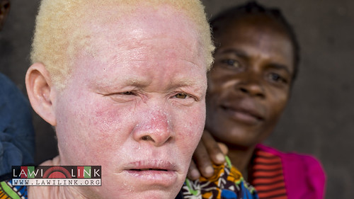 "Persons with Albinism • <a style=""font-size:0.8em;"" href=""http://www.flickr.com/photos/132148455@N06/27146763122/"" target=""_blank"">View on Flickr</a>"