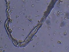 St80 lactobacillus bryandoty ioptron pediococcus sacharromyces