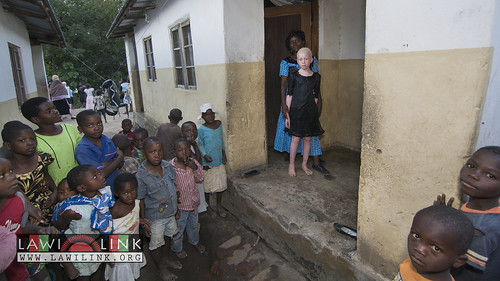 "Persons with Albinism • <a style=""font-size:0.8em;"" href=""http://www.flickr.com/photos/132148455@N06/27209566086/"" target=""_blank"">View on Flickr</a>"