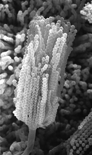 Aspergillus conidiophore