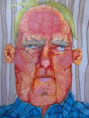 Odd-Eyed Old Man with Rosacea (Yello Skelly) Tags: man art oldman myart sharpie tacky highlighter grotesque sharpies markerart sharpieart highlighterart