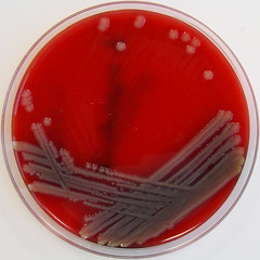 Aeromonas hydrophila on Columbia Horse Blood Agar (Nathan Reading) Tags: water small cell bap science tiny laboratory microscopic biology bd microscope bacteria microbiology gnr aga pathology hardy biorad scientific gastroenteritis diarrhoea microbe pathogen bbl bacteriology agaragar gnb cellulitis remel difco bloodagar gramnegative labm thermofisher biomerieux gramnegativerod aeromonas oxoid gramnegativebacilli columbiahorsebloodagar columbiabloodagar aeromonashydrophila ahydrophila aeromonadales opportunisticpathogen