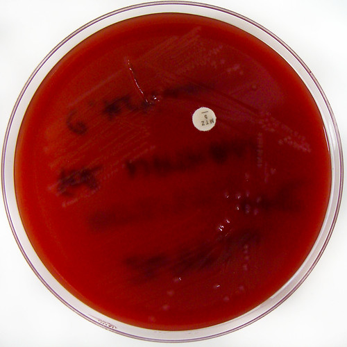 Clostridium tertium on Fastidious Anaerobe Horse Blood Agar (Nathan Reading) Tags: small cell science tiny laboratory gpb microscopic biology bd microscope bacteria microbiology aga pathology infection hardy biorad scientific microbe bacteriology agaragar remel fastidious anaerobic clostridium labm fastidiousanaerobeagar thermofisher biomerieux anaerobe oxoid grampositivebacillus clostridia columbiachocolatehorsebloodagar clostridiumtertium clostridiumspecies ctertium aerotolerant