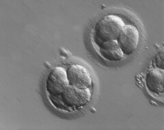 Early human embryos (ZEISS Microscopy) Tags: art contrast zeiss technology human medicine fertility dic microscope interference microscopy embryo differential fertilization reproductive ivf embryology vitro oocyte embryogenesis plasdic