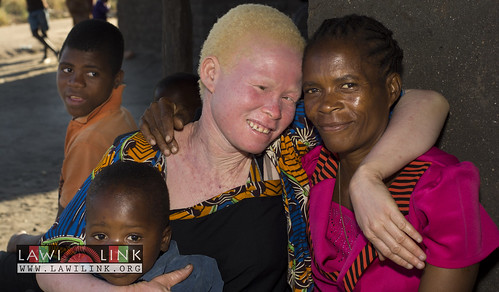 "Persons with Albinism • <a style=""font-size:0.8em;"" href=""http://www.flickr.com/photos/132148455@N06/27243703145/"" target=""_blank"">View on Flickr</a>"