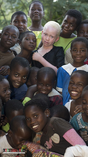 "Persons with Albinism • <a style=""font-size:0.8em;"" href=""http://www.flickr.com/photos/132148455@N06/26638217823/"" target=""_blank"">View on Flickr</a>"