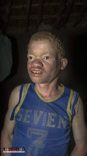 "Persons with Albinism • <a style=""font-size:0.8em;"" href=""http://www.flickr.com/photos/132148455@N06/27147210862/"" target=""_blank"">View on Flickr</a>"