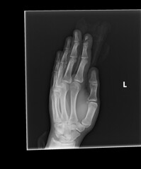 Table Saw X-Ray Top At An Angle (calvinkay) Tags: table saw accident cut finger bone fracture