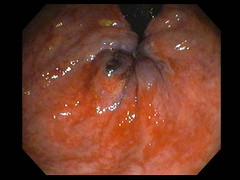 HEMORROIDE INTERNA TROMBOSADA (carreiromanuel) Tags: hemorroides gastroenterologia haemorhoids