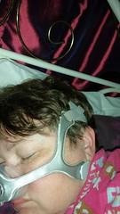 Me wearing my nasal mask at bedtime for my sleep apnea condition (Carol B London) Tags: sleeping mask sleep asleep nasal osa cpap nightnight sleepproblems nasalmask slepapnea