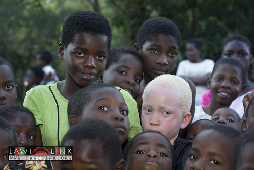 "Persons with Albinism • <a style=""font-size:0.8em;"" href=""http://www.flickr.com/photos/132148455@N06/26638238733/"" target=""_blank"">View on Flickr</a>"