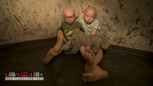 "Persons with Albinism • <a style=""font-size:0.8em;"" href=""http://www.flickr.com/photos/132148455@N06/27208696926/"" target=""_blank"">View on Flickr</a>"