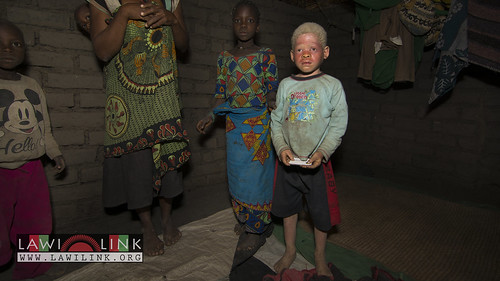 "Persons with Albinism • <a style=""font-size:0.8em;"" href=""http://www.flickr.com/photos/132148455@N06/26636514354/"" target=""_blank"">View on Flickr</a>"
