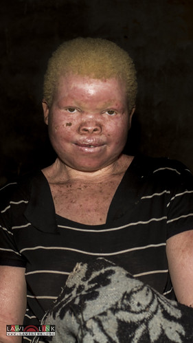 "Persons with Albinism • <a style=""font-size:0.8em;"" href=""http://www.flickr.com/photos/132148455@N06/27242979045/"" target=""_blank"">View on Flickr</a>"