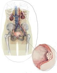 (Elizabeth Builes) Tags: cancer medica ilustracion periodico cientifica oncologia elcolombiano vejiga