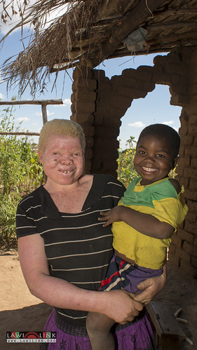 "Persons with Albinism • <a style=""font-size:0.8em;"" href=""http://www.flickr.com/photos/132148455@N06/27208812146/"" target=""_blank"">View on Flickr</a>"
