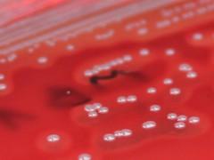 Sa_fc (Bacteriology) Tags: microbiology bacteriology staphylococcusaureus bloodagar hemolysis