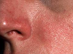 Rosacea (patientenfolder) - huidziekten.nl