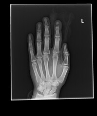 Table Saw X-Ray Top Down (calvinkay) Tags: table saw accident cut finger bone fracture