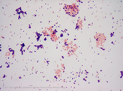 Gram stain demonstration slide, 1,000x 1 (Marc Perkins - OCC Biology Department) Tags: pink purple cell slide stained preserved microscope bacteria microbiology occ coccus prokaryote gramnegative grampositive marcperkins