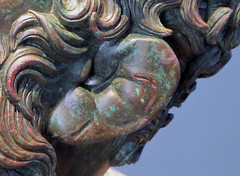 Apollonius, Boxer at Rest, detail with swollen ear