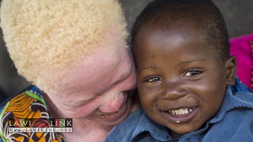 "Persons with Albinism • <a style=""font-size:0.8em;"" href=""http://www.flickr.com/photos/132148455@N06/26968383960/"" target=""_blank"">View on Flickr</a>"