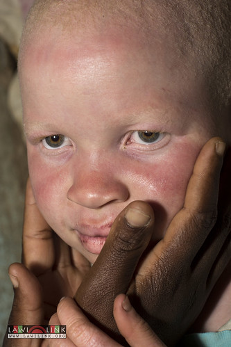 "Persons with Albinism • <a style=""font-size:0.8em;"" href=""http://www.flickr.com/photos/132148455@N06/27173585771/"" target=""_blank"">View on Flickr</a>"