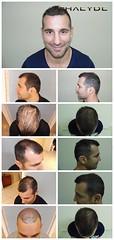 Appelez nos médecins d'implantation de cheveux avec vos questions  http://fr.phaeyde.com/greffe-de-cheveux (phaeydeclinicfrance) Tags: hungary budapest clinic cheveux greffe phaeyde