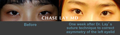 Slide16 (chaselaymd) Tags: asian eyelid