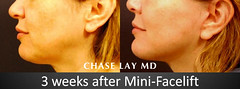Slide18 (chaselaymd) Tags: face neck facelift necklift chaselaymd