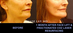 Slide12 (chaselaymd) Tags: face neck facelift necklift chaselaymd
