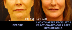 Slide11 (chaselaymd) Tags: face neck facelift necklift chaselaymd
