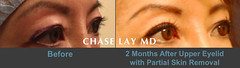Slide22 (chaselaymd) Tags: asian eyelid