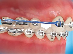 braces (Braces Dentist) Tags: tooth braces teeth dental dentist dentistry orthodontics denture upperteeth dentalbraces lowerteeth