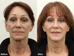Dr. Darm, MiniLift Before and After - MD Slide1 (dr. darm) Tags: facelift darm facelifts minilift faceliftbeforeandafter faceplasticsurgery drdarm laserlift lipolift laserliposuctionportland faceliftportland drdarmportland lipoliftbeforeandafter miniliftbeforeandafters minilifttestimonials faceliftoregon miniliftcost
