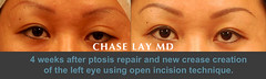 Slide05 (chaselaymd) Tags: asian eyelid