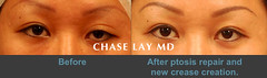 Slide1 (chaselaymd) Tags: eye asian droopy surgery sagging eyelid ptosis chaselaymd