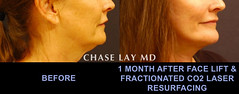 Slide13 (chaselaymd) Tags: face neck facelift necklift chaselaymd