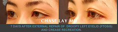 Slide4 (chaselaymd) Tags: eye asian droopy surgery sagging eyelid ptosis chaselaymd