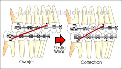 Correction with Elastic Wear Braces (Braces Dentist) Tags: tooth braces teeth dental dentist dentistry orthodontics denture upperteeth dentalbraces lowerteeth
