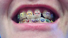 rainbow braces (Braces Dentist) Tags: tooth braces teeth dental dentist dentistry orthodontics denture upperteeth dentalbraces lowerteeth